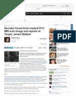 Secretly Forced Brain Implants Part II - Www-examiner-com