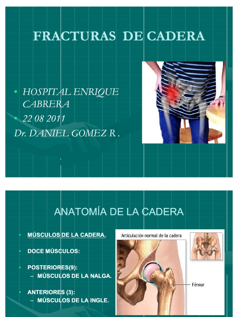 FRACTURAS DE CADERA (5)
