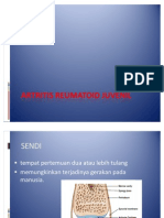 Artritis Reumatoid Juvenil Print