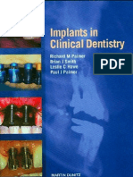 Implants in Clinical Dentistry 2002 - Palmer