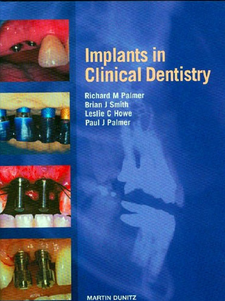 implants in clinical dentistry pdf