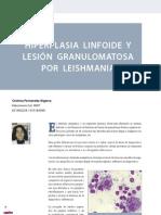CV14 hiperlasia linfoide