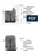 Normal Radiographic Dental Anatomy