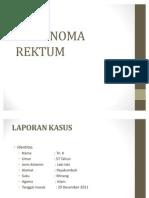 KARSINOMA REKTUM
