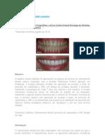 Clareamento dental caseiro - Artigo