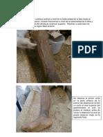Diseccion Miembro Inferior _pierna y Pie_ Angela Valderruten - Edgar Vergara