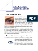 What is Macular Hole, Stages, Treatment, Surgery and Surgery Recovery?