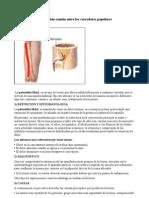 periostitis