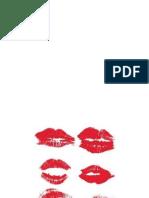Grenzsituation Kiss