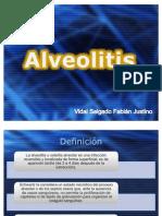 Alveolitis y pericoronitis