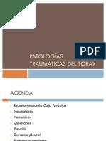 Tubotorax