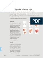 Mainz II Surgery Illustrated