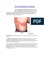 Herpes zoster tratamiento natural