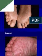 09 Dermatoze Alergice Studenti2 +POZE