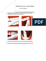 Cara Menyikat Gigi Yang Benar