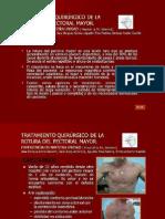 P-011 - TRATAMIENTO QUIRÚRGICO DE LA ROTURA DEL PECTORAL MAYOR corregido (1)