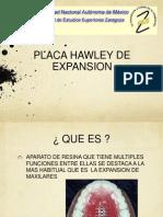 placa hawley