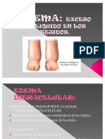 Edema Fisiologia 100303145326 Phpapp01