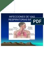 Infecciones de Vias Respiratorias Bajas