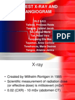 Chest X-ray and Coronary Computed Tomography Angiogram
