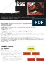 Prothese Unitaire Sur Implant