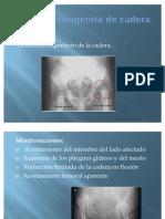 Luxación congénita de cadera y Cardiopatias_
