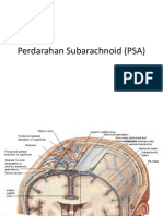 Perdarahan Subarachnoid (PSA)