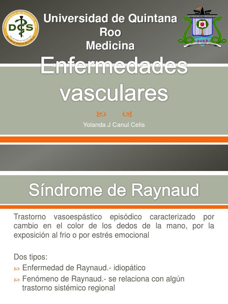 Excelente Uñas Enfermedad De Raynaud Colección de Imágenes - Ideas ...