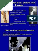 2- Tecnicas Para Protesis Totales de Cadera