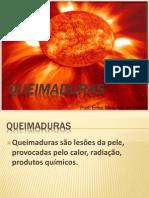 AULA+SENAC+QUEIMADURA