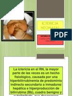 Ictericia Neonatal