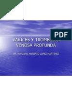 Varices y Trombosis Venosa Profunda