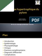 Sténose hypertrophique du pylore