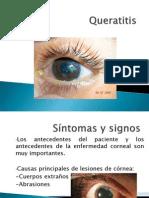 Queratitis_ulceras