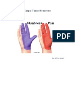 AaCarpal Tunnel Syndrome (1)