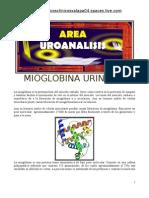 Mioglobina en Orina