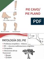 (7) Pie Cavo-pie Plano