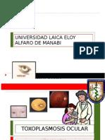 Toxoplasmosis Ocular o