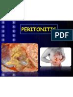 Peritonitis!!!!
