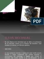 Ileon meconial