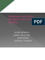 H.P.B y Cancer de Prostata