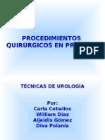 Procedimietnos Quirurgicos en Prostata