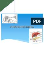 Pancreatectomia