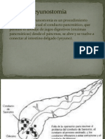 Pancreatoyeyunostomia