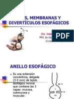 ANILLOS, MEMBRANAS Y DIVERTÍCULOS ESOFÁGICOS1