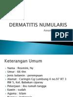Dermatitis Numularis