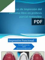 Técnicas de Impresión del extremo libre en prótesis