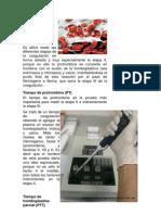 Las pruebas de coagulación