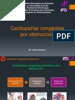 Cardiopatías congénitas por obstrucción