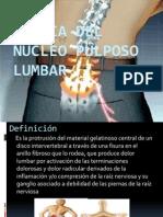 Hernia del núcleo pulposo lumbar.pptx yooo